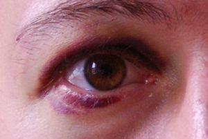 Слабая степень глазной контузии