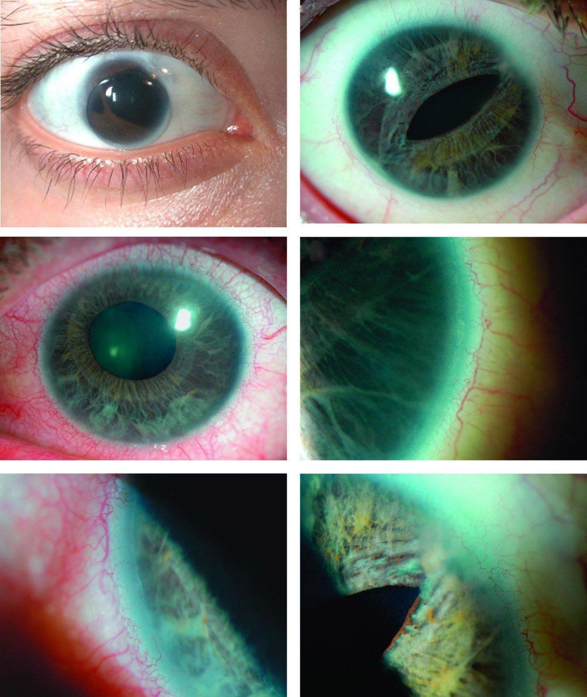 Состояние глаза при синдроме Аксенфельда