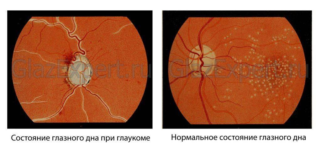 Состояние глазного дан при глаукоме
