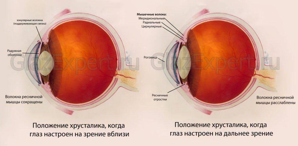 Можно ли восстановить зрение от миопии
