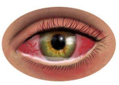 Как выглядит глаз при аллергии
