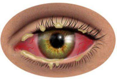 Заражение глаза бактериями