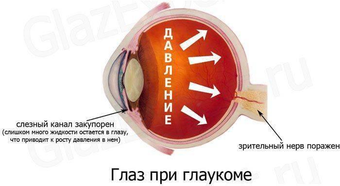 Как выглядит глаукома: схема