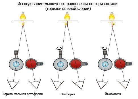 Исследование мышечного равновесия по горизонтали