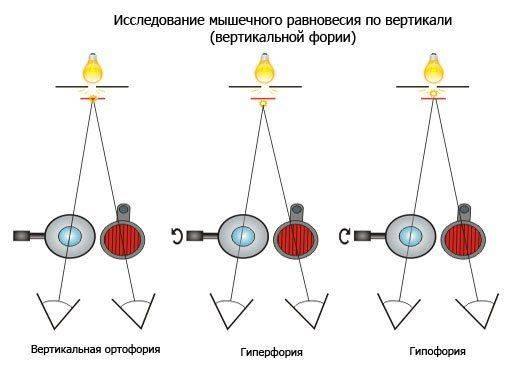 Исследование мышечного равновесия по вертикали