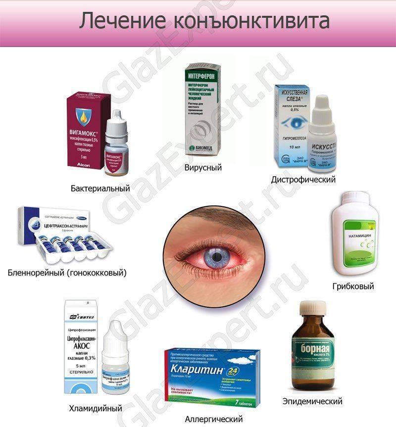 Инфографика: лечение конъюнктивита