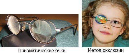 Призматические очки и метод окклюзии