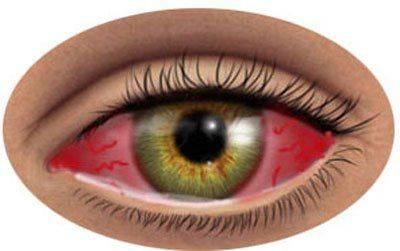 Вирусная инфекция на глазу