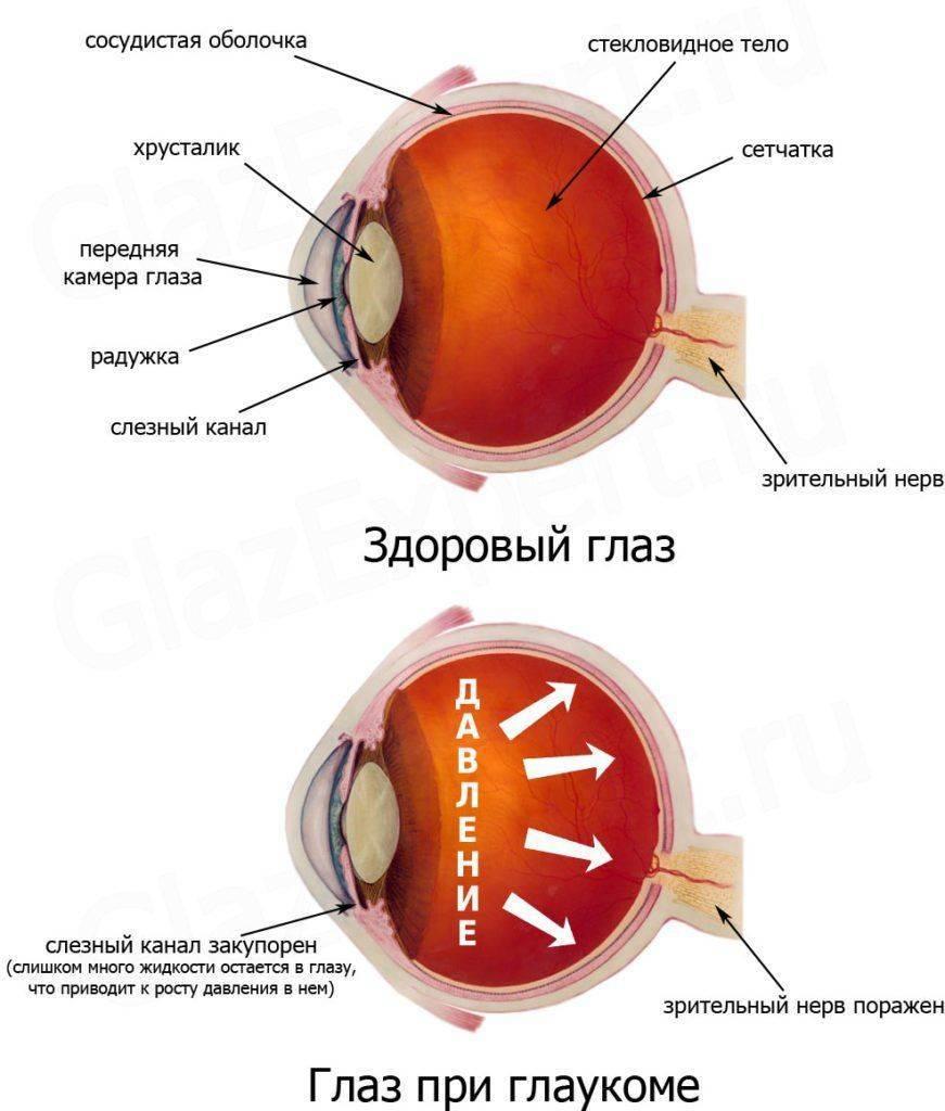 Здоровый глаз и глаз при глаукоме