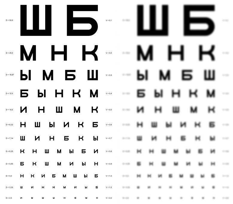 Операции по коррекции зрения с какого возраста можно делать
