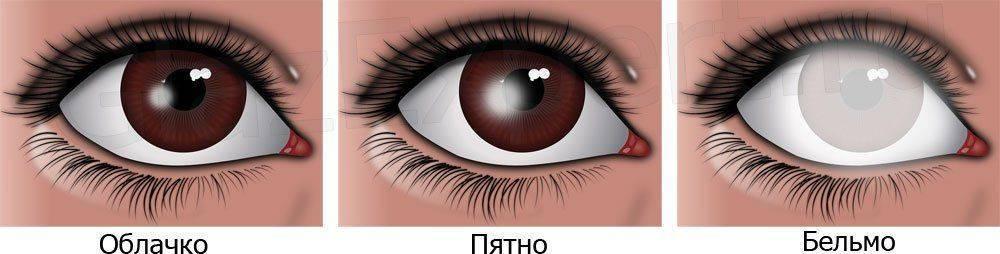 Виды бельма на глазу