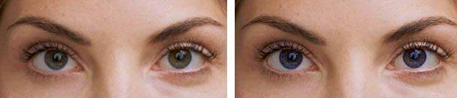 Глаза изменили цвет
