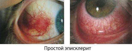 Простой эписклерит