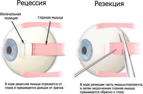 Сделать операцию на глаза в санкт петербурге