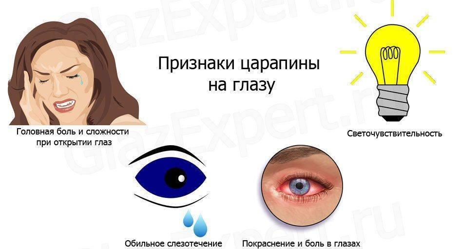 Симптомы поцарапанного глаза