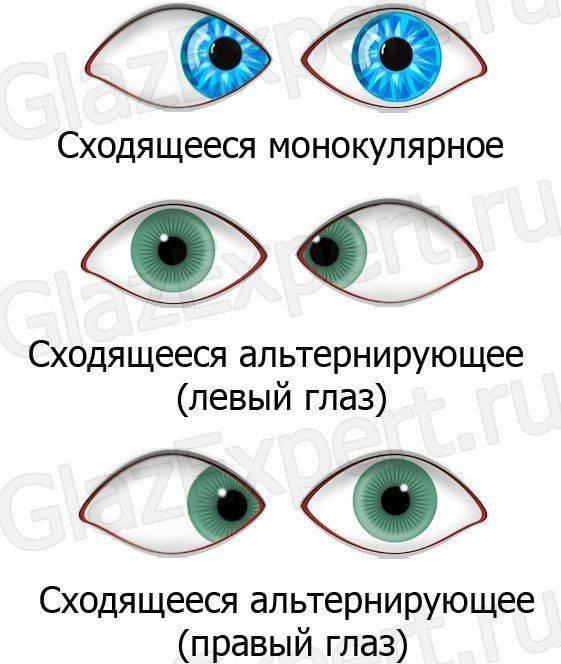 Виды эзотропии