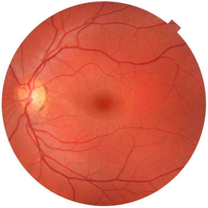 Нормальное глазное дно