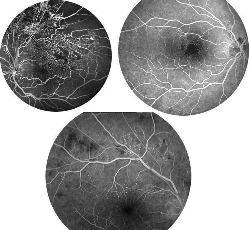 Флуоресцентная ангиография глаза: глазное дно
