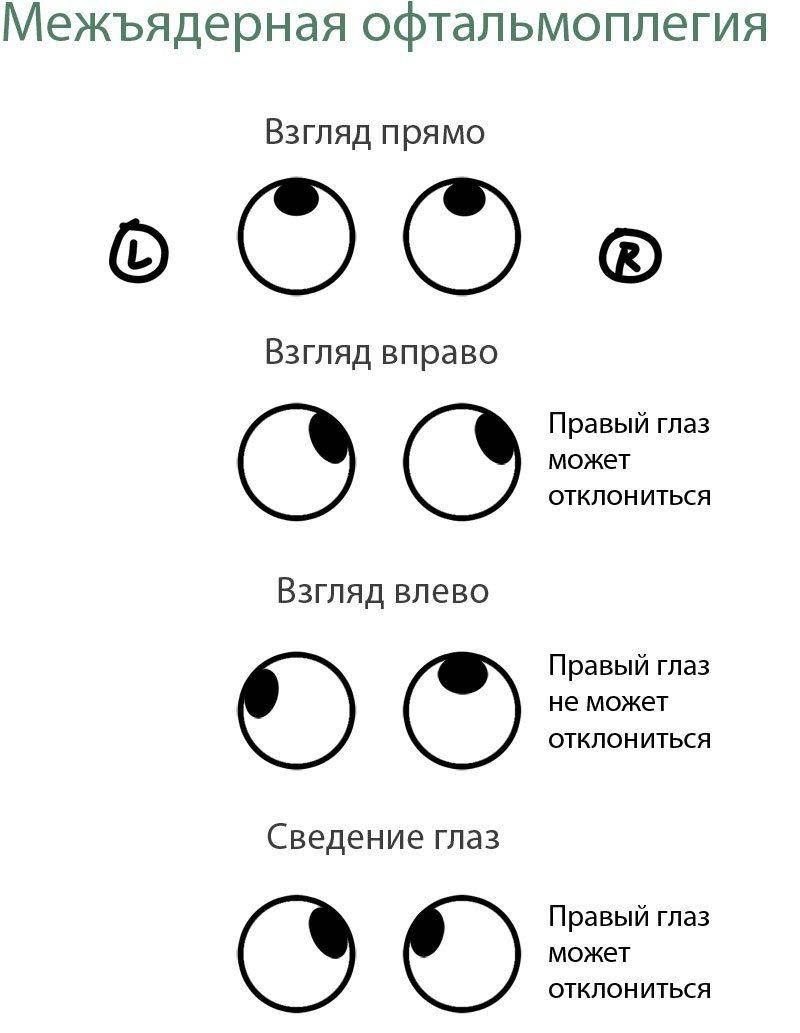 Межъядерная
