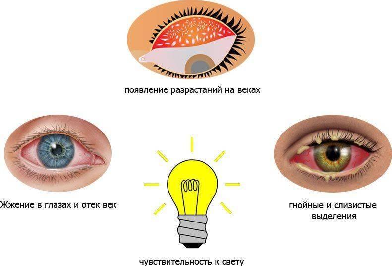 Основные симптомы трахомы