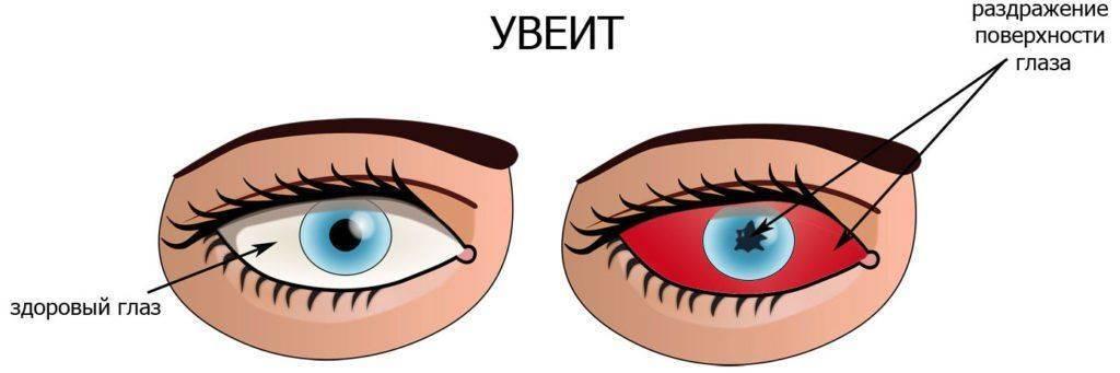 Глаз нормальный и с увеитом