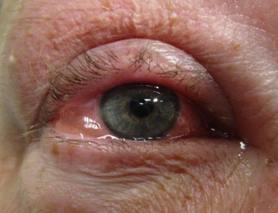 Как выглядит аллергия на глазу