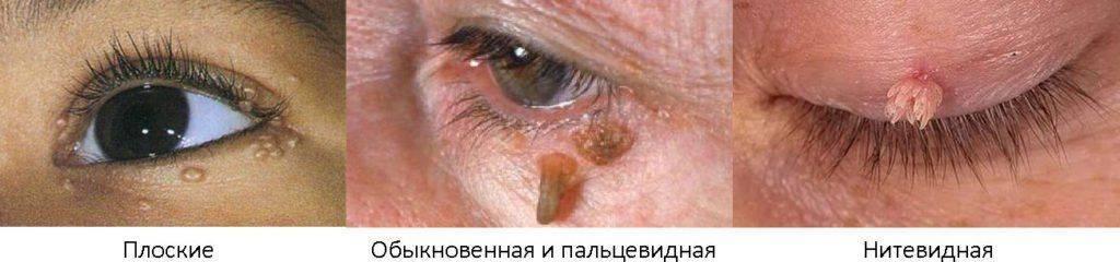Типы бородавок на глазу