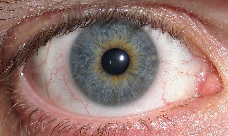 Как выглядит покрасневший глаз