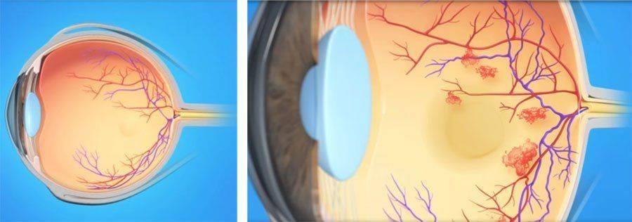 Как выглядит тромбоз глаза