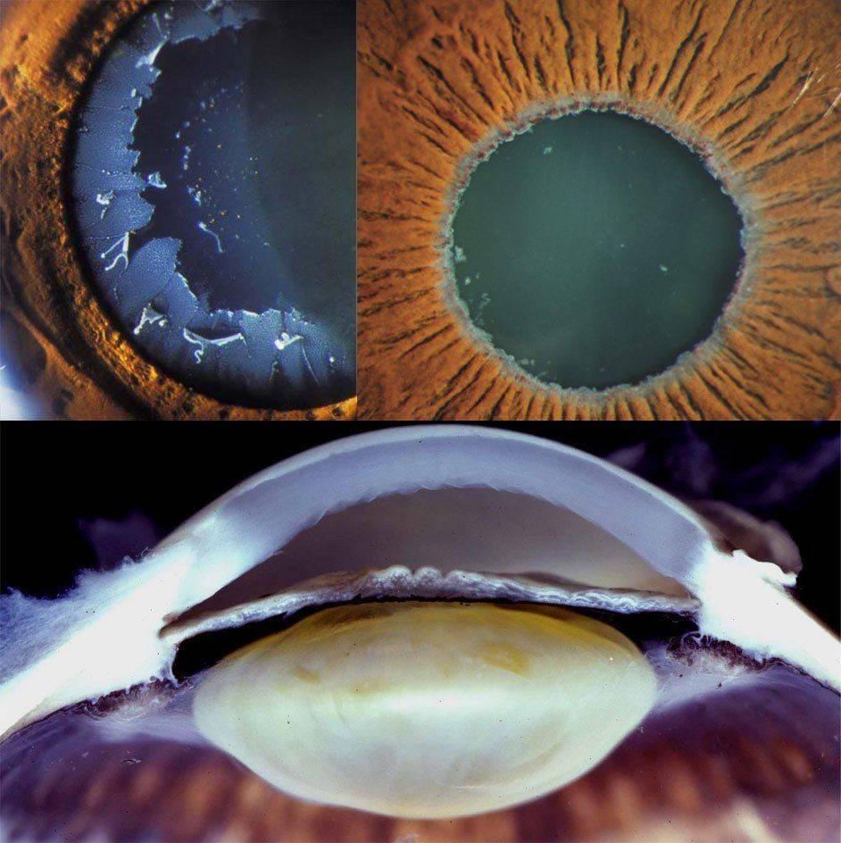 Псевдоэксфолиативный синдром: признаки в глазу